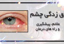 برق زدگی چشم بر اثر جوشکاری | علائم، پیشگیری و راه های درمان